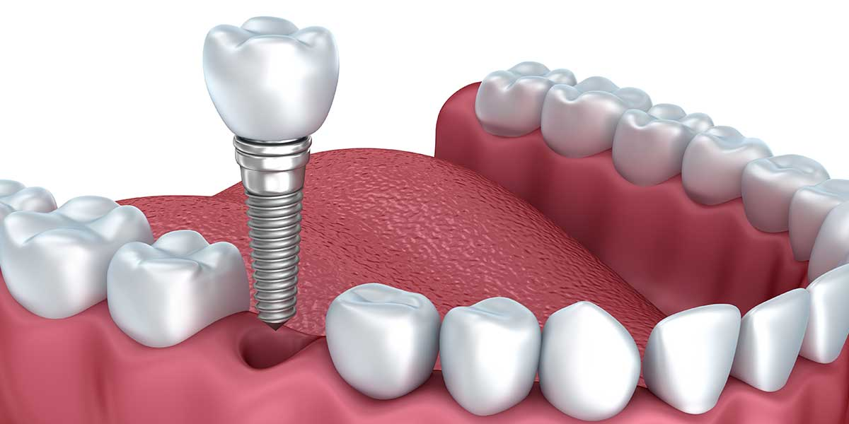 Image result for Dental Implants